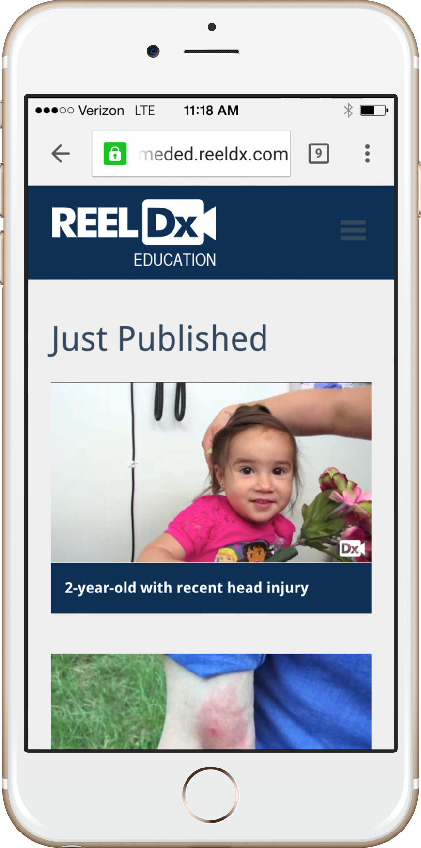 ReelDx website displayed on an iPhone
